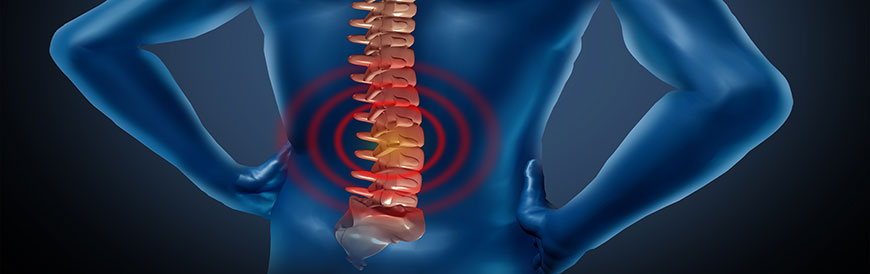 Spinal Decompression Treatment in Fremont